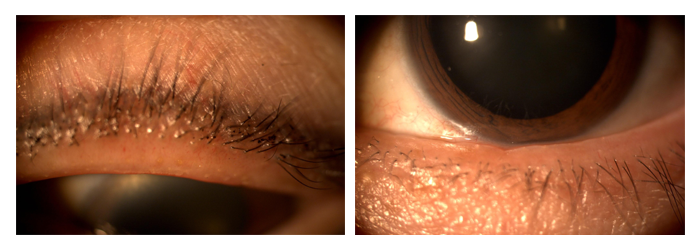 Blepharitis (Meibomian Gland Dysfunction)