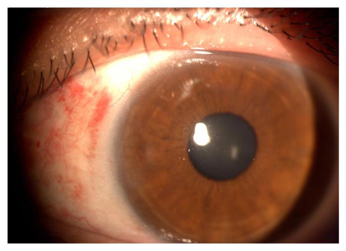corneal-4