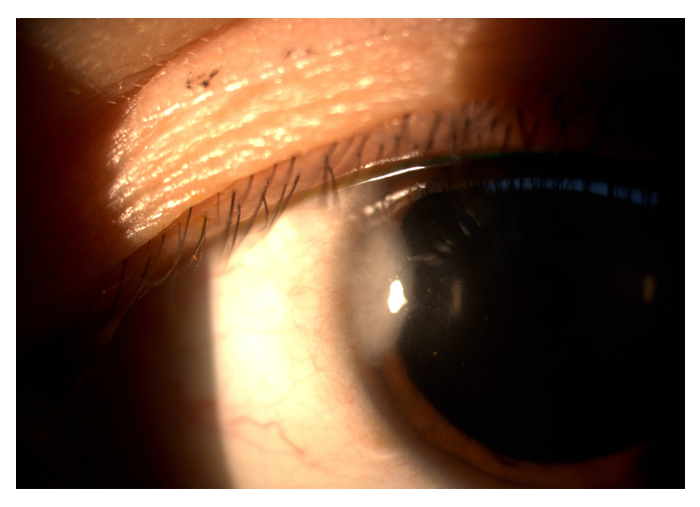 corneal-5