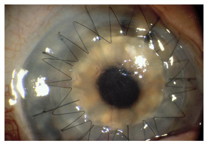 corneal-1
