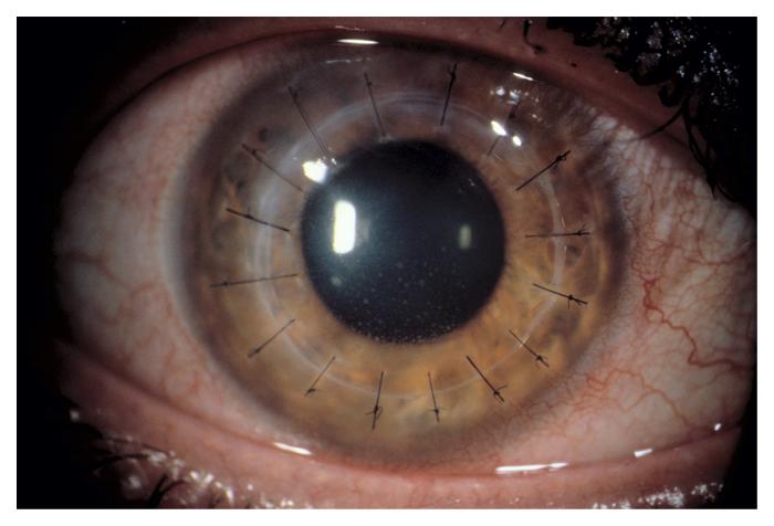corneal-2