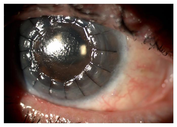 corneal-3