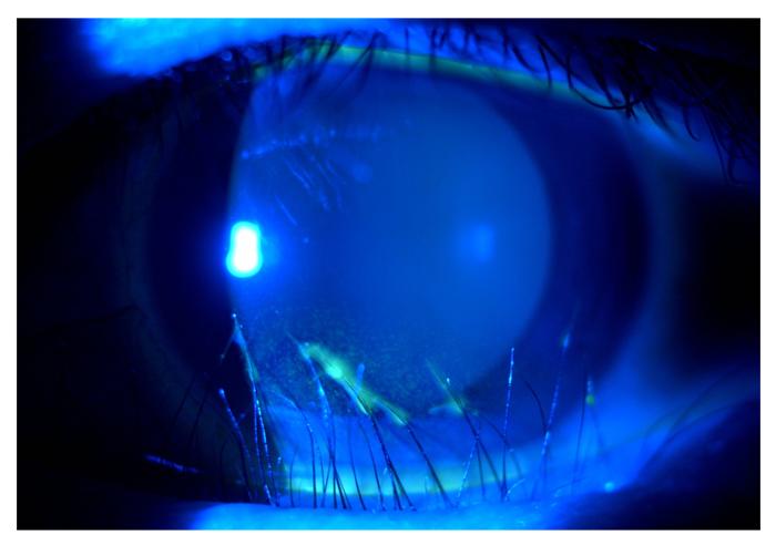 eyelid-surgery-10