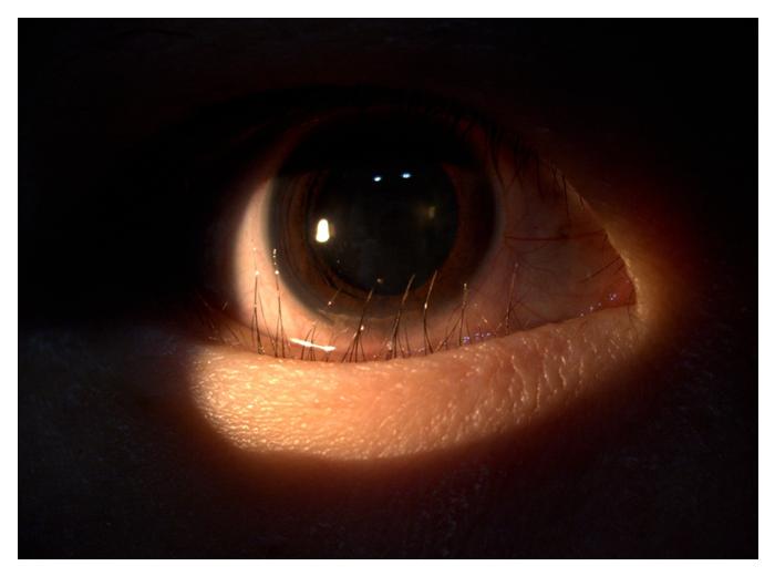 eyelid-surgery-8
