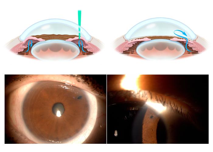 glaucoma-11