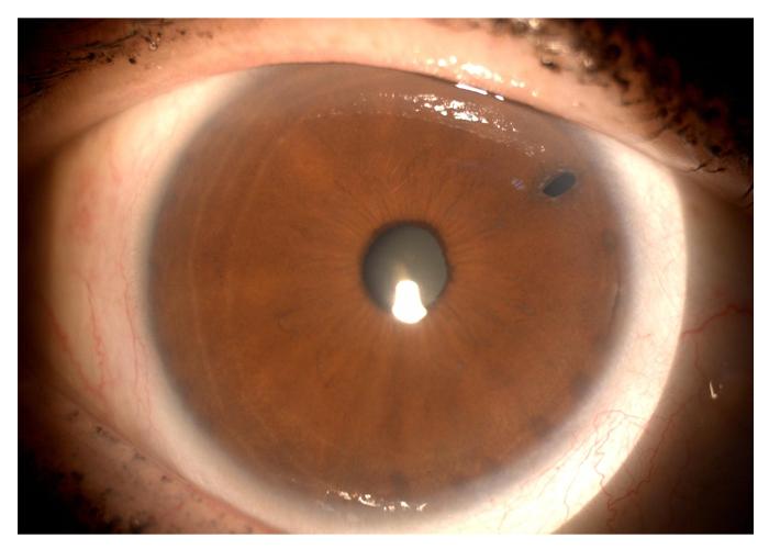 glaucoma-12