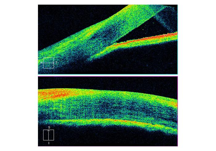 glaucoma-4