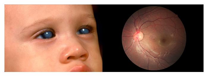 glaucoma-5