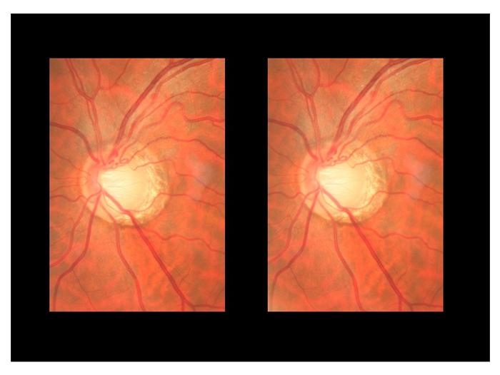 glaucoma-7
