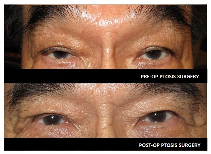 pre and post op ptosis adult1