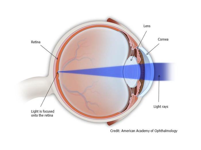 refractive-1