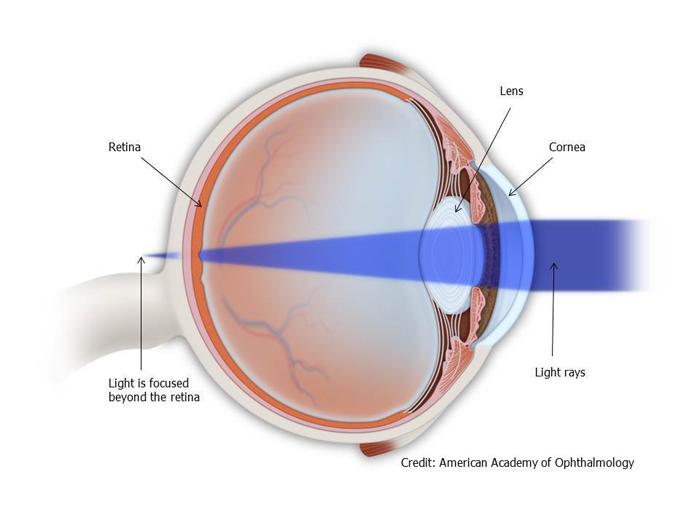 refractive-3