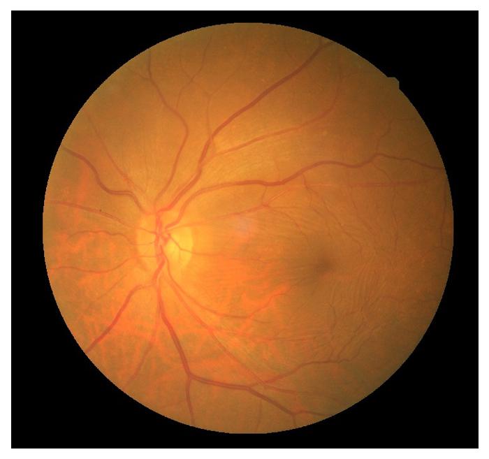 retinal-10