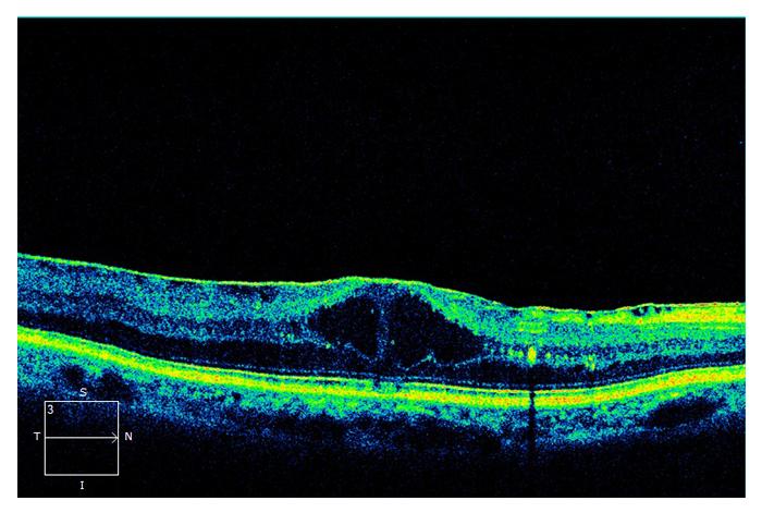 retinal-11