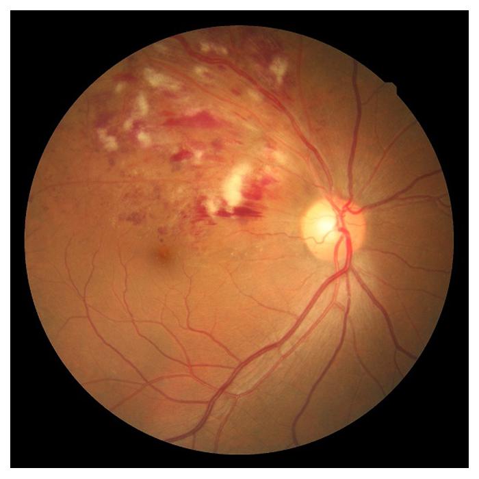 retinal-13