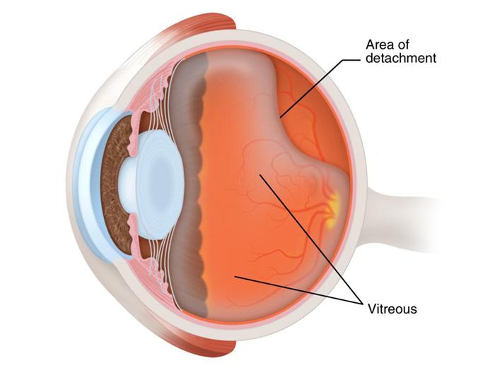 retinal-2