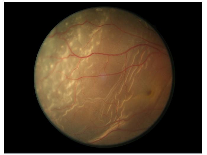 retinal-5