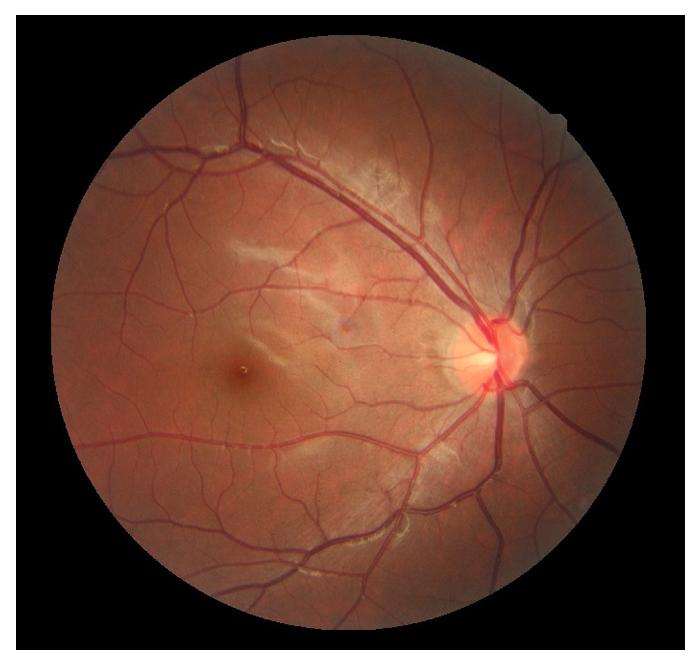 retinal-6