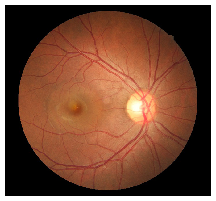 retinal-7