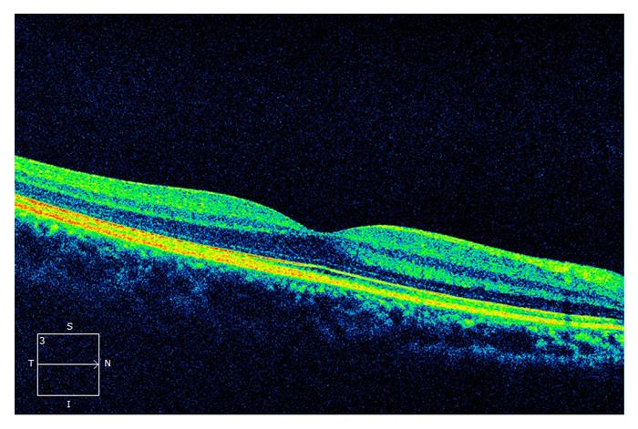 retinal-8